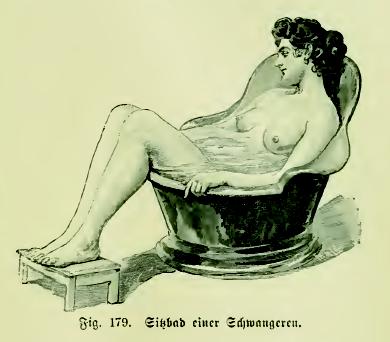 bain de siège pour hémorroïdes